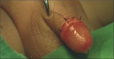 Foto mužská obřízka: čerstvá obřízka u chlapce
